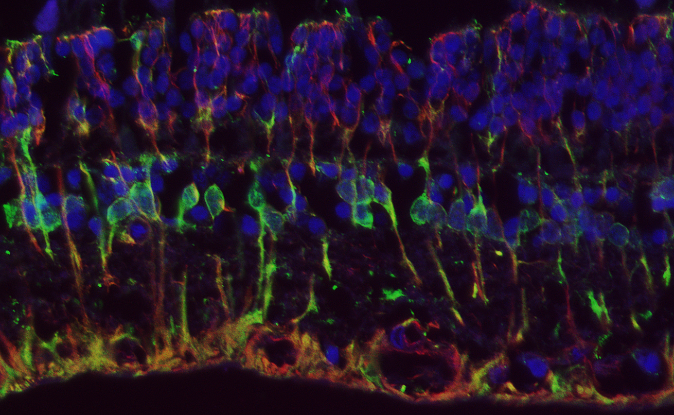 Internal view of a retina, courtesy of the Brandt Lab